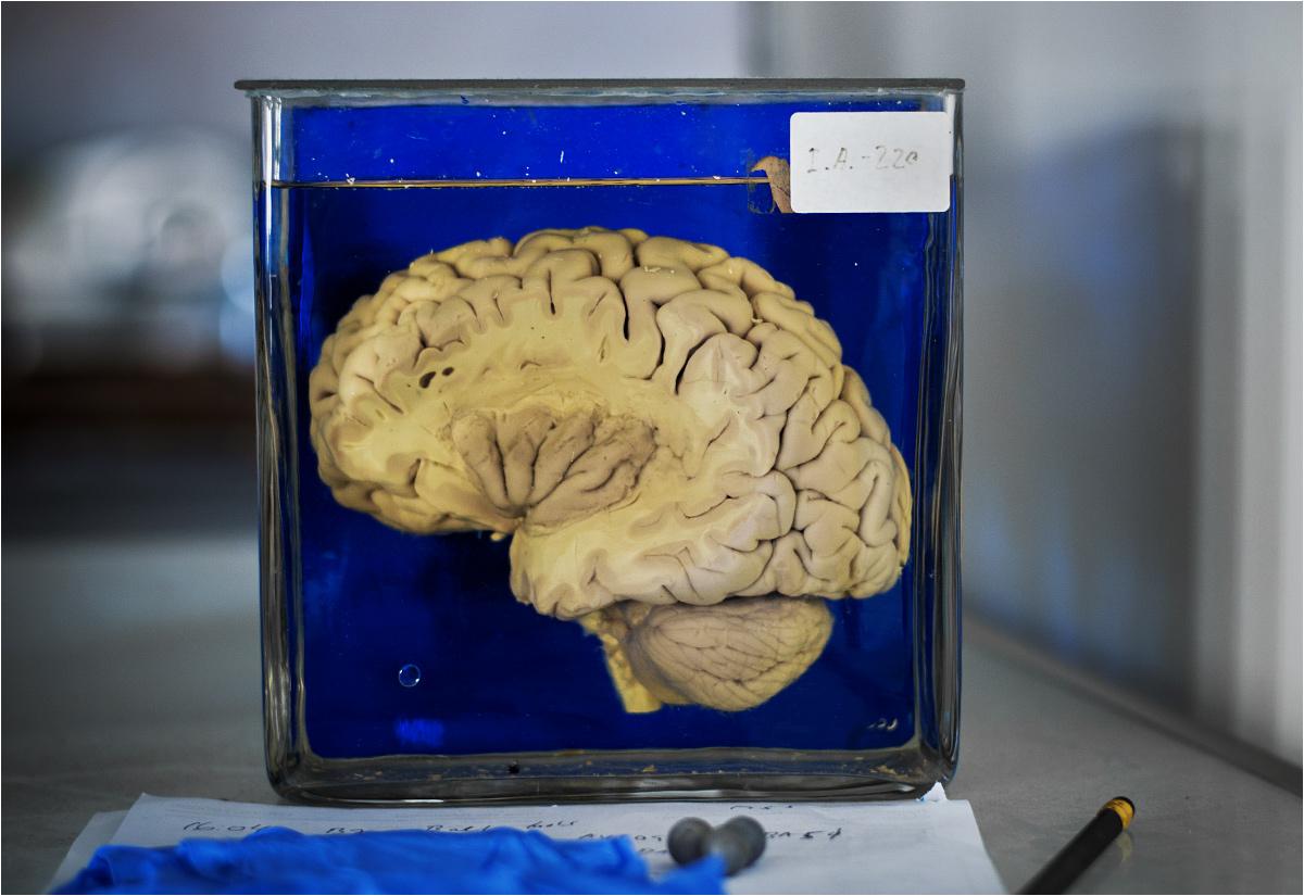 Uczyć można się też z przekroju ludzkiego mózgu